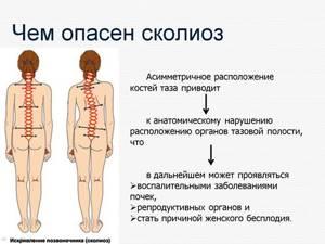 Сколиоз 2 степени: можно ли вылечить, s и c образный, симптоматика и признаки патологии, лечебная физкультура и мануальная терапия в борьбе с болезнью