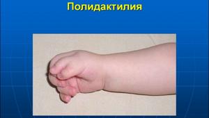 Полидактилия: частота встречаемости, описание и клиническая картина заболевания у взрослых и детей, признаки болезни, фото и способы лечения