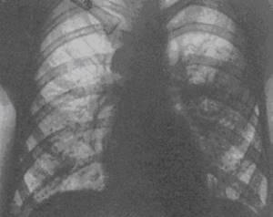 Гиполордоз: виды и механизм развития заболевания, специфические симптомы и способы диагностики, консервативные методы лечения и меры профилактики, возможные осложнения