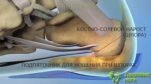 Боль в пятке при ходьбе: причины неприятного болевого ощущения, симптомы, комплексное лечение народными и медицинскими средствами
