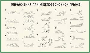 Зарядка при грыже поясничного отдела позвоночника: польза гимнастики и меры предосторожности, рекомендованные упражнения и правила их выполнения