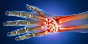 МРТ кисти руки и лучезапястного сустава: преимущества диагностики, показания и противопоказания к назначению, подготовка и этапы исследования, эффективность и цена