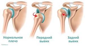 Вывих плеча: причины повреждения, как вправить, алгоритм действия, первая помощь и лечение, возможные осложнения и профилактика