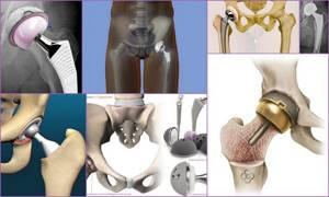 Осложнения после эндопротезирования тазобедренного сустава: причины и симптомы нарушения, способы устранения негативных последствий и рекомендации по реабилитации