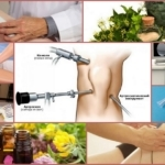Киста Бейкера коленного сустава: особенности патологии, виды, размеры для проведения операции, подготовка к хирургическому вмешательству, реабилитация