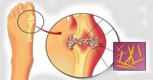 Алмаг для лечения подагры: принцип работы и противопоказания, основные характеристики прибора, мнения пациентов и врачей, помогает или нет