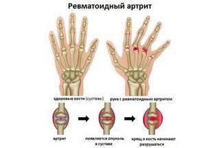 Диета при ревматоидном артрите суставов: основы и правила лечебного питания, перечень разрешенных и запрещенных продуктов, рекомендованное меню и важные советы врачей