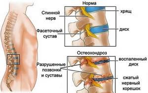 Электрофорез с новокаином при остеохондрозе: показания и противопоказания к процедуре, принцип проведения и эффективность, преимущества и недостатки метода