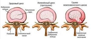 Полисегментарный остеохондроз: что делать в домашних условиях, диагностика и лечение заболевания, симптомы и причины