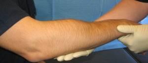 Перелом голеностопа: причины и виды травмы, методы диагностики и рекомендации по оказанию первой помощи, методы лечения и реабилитации, возможные осложнения