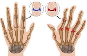 Воспаление суставов пальцев рук: причины, клиническая картина и симптомы патологии, диагностика и лечение на разных стадиях методами традиционной и нетрадиционной медицины