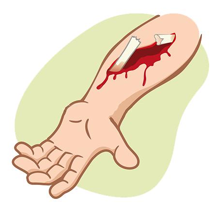 Перелом по типу зеленой ветки: специфика и причины травмы, основные симптомы и методы диагностики, правила оказания первой помощи и лечение, сроки восстановления