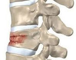 Компрессионный перелом позвоночника грудного отдела: первая помощь, основные причины травмы, признаки, диагностика и лечебные меры