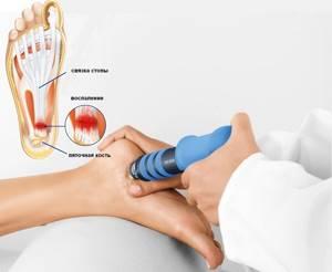 Лечение пяточной шпоры мочой: эффективность и техника проведения терапии, проверенные методы нетрадиционной медицины для применения в домашних условиях