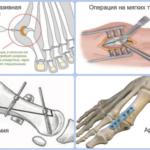 Операция на плоскостопие: показания и цели хирургического лечения, стоимость, показания, возможные осложнения, реабилитация после больницы