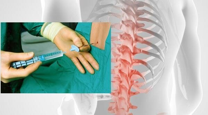 Уколы от боли в спине: группы и названия средств противовоспалительного характера, показания и противопоказания, отзывы пациентов