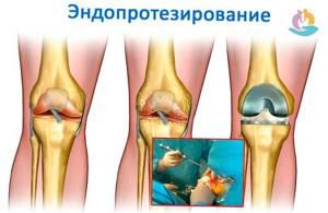 Артроз коленного сустава: признаки возникновения патологии, клиническая картина и способы диагностики, консервативная терапия в домашних условиях и показания для операции