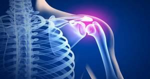 Синовит плечевого сустава: классификация и клиническая картина, диагностические способы и методы консервативной терапии, народные методы