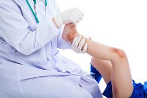 Боль под коленом: почему возникает, какие заболевания провоцируют симптом, методы диагностики, как лечить болевой синдром лекарственными препаратами и средствами народной медицины