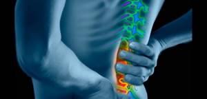 Грыжа Шморля: описание и виды болезни, причины появления и специфические симптомы, диагностика и методы лечения, последствия и возможные осложнения, профилактика недуга