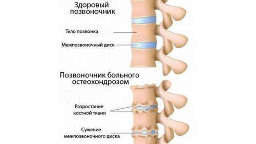 Почему немеет большой палец на руке: причины развития симптома, медикаменты и физиотерапевтические мероприятия для лечения патологии, рекомендации специалистов