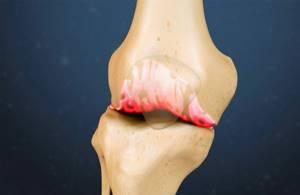 Остеофиты коленного сустава: причины возникновения и симптомы, общие правила и методы лечения, физиотерапевтические процедуры