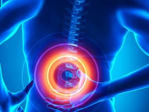 Гирудотерапия при грыже поясничного отдела позвоночника: плюсы и минусы метода, показания и противопоказания к терапии, техника проведения и отзывы о процедуре