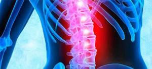 Хондроз и остеохондроз: краткая характеристика заболеваний, причины их возникновения, различие по рентгенологическим и клиническим признакам, особенности лечения