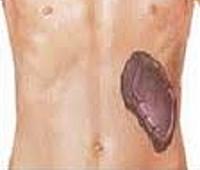 Синдром Фелти: причины развития патологии, клиническая картина и особенности диагностики, лечебные мероприятия и меры профилактики, осложнения и прогноз для жизни