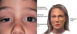 Миастения: классификация и причины развития патологии, первые признаки и диагностика, современные и народные способы лечения, возможные осложнения и прогноз