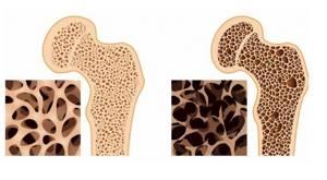Остеопороз костей черепа: клиническая картина и симтоматика, причины и диагностика болезни, способы лечения и профилактики