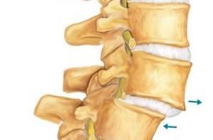 Смещение позвонков грудного отдела: симптомы, причины, диагностика заболевания и способы лечения