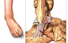Разрыв связок плечевого сустава: как лечить, симптоматика и причины, первичная терапия и последующее лечение, реабилитация после травмы