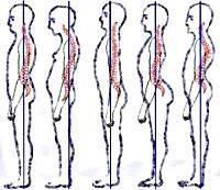 Плоская спина: понятие и симптомы патологии, методы терапии и массаж, можно ли выявить патологическую осанку без помощи специалиста