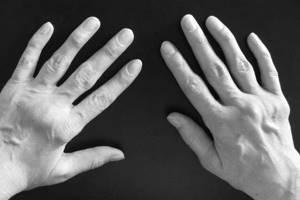 Фламакс уколы: показания и противопоказания, механизм действия, инструкция по применению, отзывы, аналоги и цены