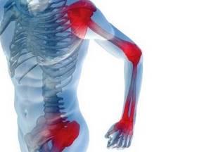 Артралгия: признаки и факторы риска, клиническая картина болезни, способы профилактики и терапии, методы диагностики и народные рецепты