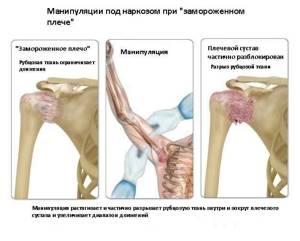 Адгезивный капсулит плеча: причины и признаки развития, лечебные мероприятия и способы диагностики, формы болезни