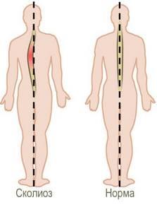 Сколиоз 4 степени: симптоматика и признаки патологии, методы терапии и профилактика осложнений, показания к операции и инвалидность