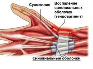 Ганглий сухожилия: симптомы и клиническая картина, методы борьбы и недугом и его профилактика, показания для операции