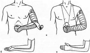Контрактура локтевого сустава: классификация, причины и симптомы заболевания, диагностические методы, лечение фармакологическими препаратами и физиотерапевтическими процедурами