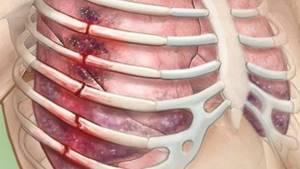Вывих ребра: механизм получения травмы и основные признаки, отличия повреждений и первая помощь, медицинская диагностика и способы терапии