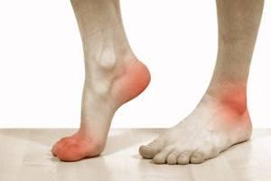 Мазь от косточек на ногах: обзор самых эффективных аптечных препаратов и рекомендации по их применению, рецепты приготовления средств в домашних условиях