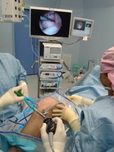 Артропластика: виды суставной пластики, показания и техника проведения операции, рекомендации в реабилитационный период, противопоказания и стоимость процедуры