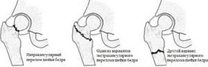 Боль в тазобедренном суставе лежа на боку ночью: характеристика и первая помощь, как снять неприятные ощущения и показания к операции, возможные патологии