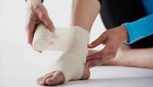 Растяжение связок голеностопного сустава: лечение в домашних условиях народными и медицинскими средствами, первая помощь при травме, профилактика