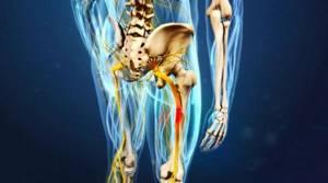 Защемление нерва в ноге: физиотерапевтическое воздействие и особенности терапии, сложности во время беременности и народные методики, применение медикаментов