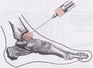 Артрит голеностопного сустава: диагностические методы и причины развития болезни, симптоматические проявления и методы терапии