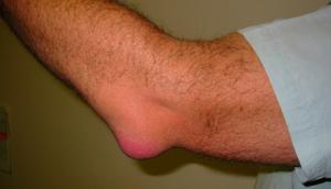 Бурсит локтевого сустава: причины и признаки заболевания, диагностика и методы терапии, инфекционные и асептические виды болезни