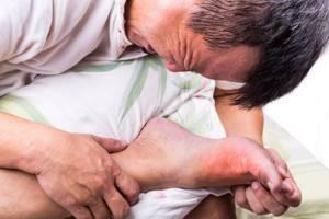 Что такое подагра: симптомы и причины, диета при заболевании и как лечить болезнь, описание недуга