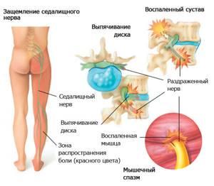 Массаж при защемлении седалищного нерва в домашних условиях: техника выполнения, рекомендации и противопоказания, совмещение с другими способами лечения